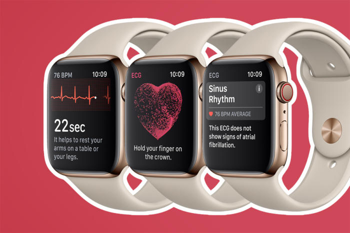 Apple Watch - Series 4 > Athletics / health / fitness > ECG / heartrate / sinus rhythm